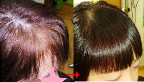 ミコノスクリニックシステムで髪がキレイに!