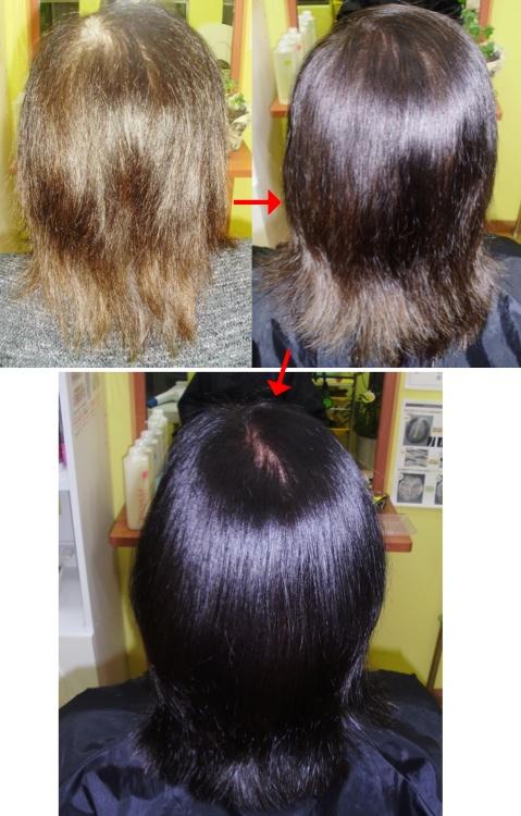 ミコノスクリニックシステムで髪の損傷が治る!