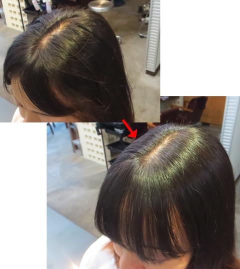 ミコノスクイックトリートメント&前髪縮毛矯正:板橋区美容室flow